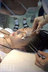 WEALTHY folks in China are willing to go under the knife for a unique appearance.