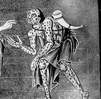 Medieval zombies were often mistaken for lepers.